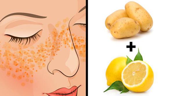 Patates ve limon suyu maskesi