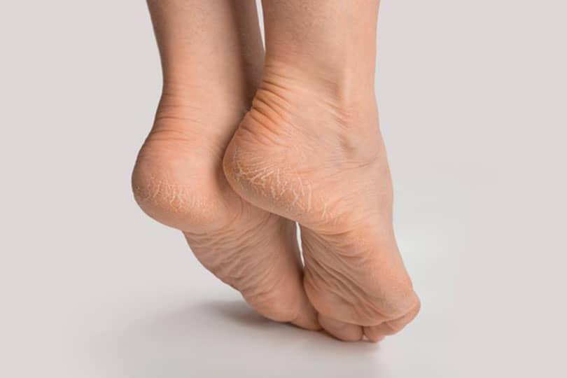 topuk catlaklari nasil gecer