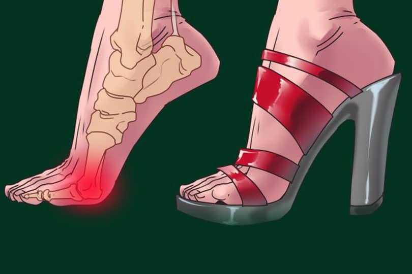 topuklu ayakkabi giymenin zararlari